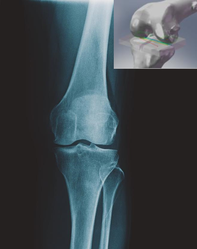Medical Devices - Automation Enables First-Time Right Bone Replacements